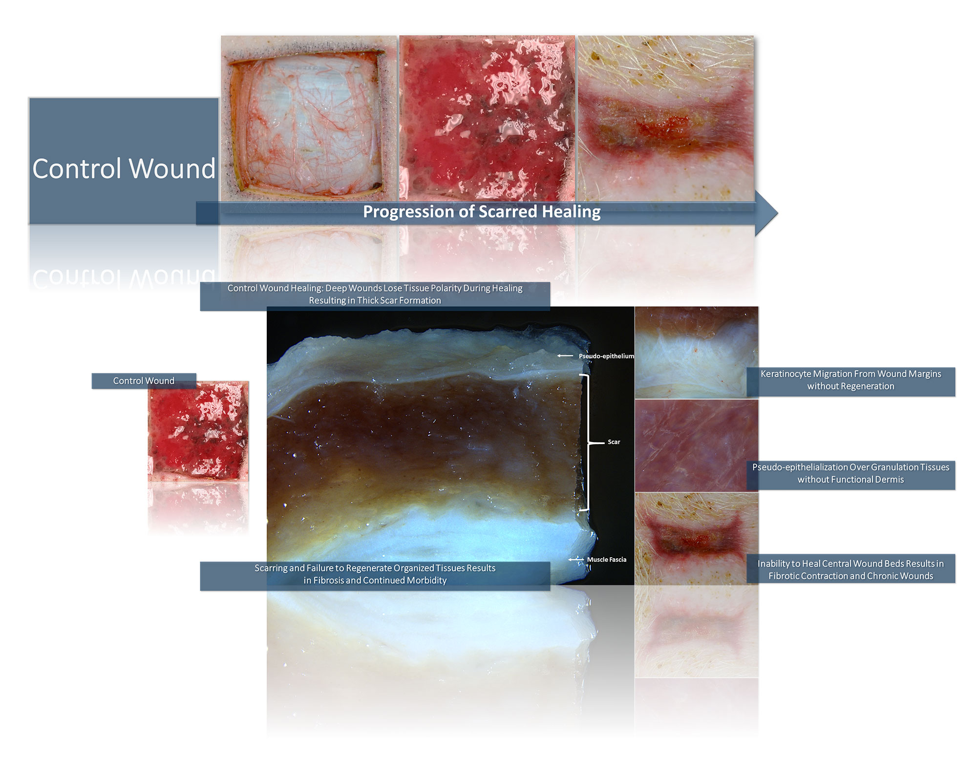 Control Wound Results in Contracted Scar
