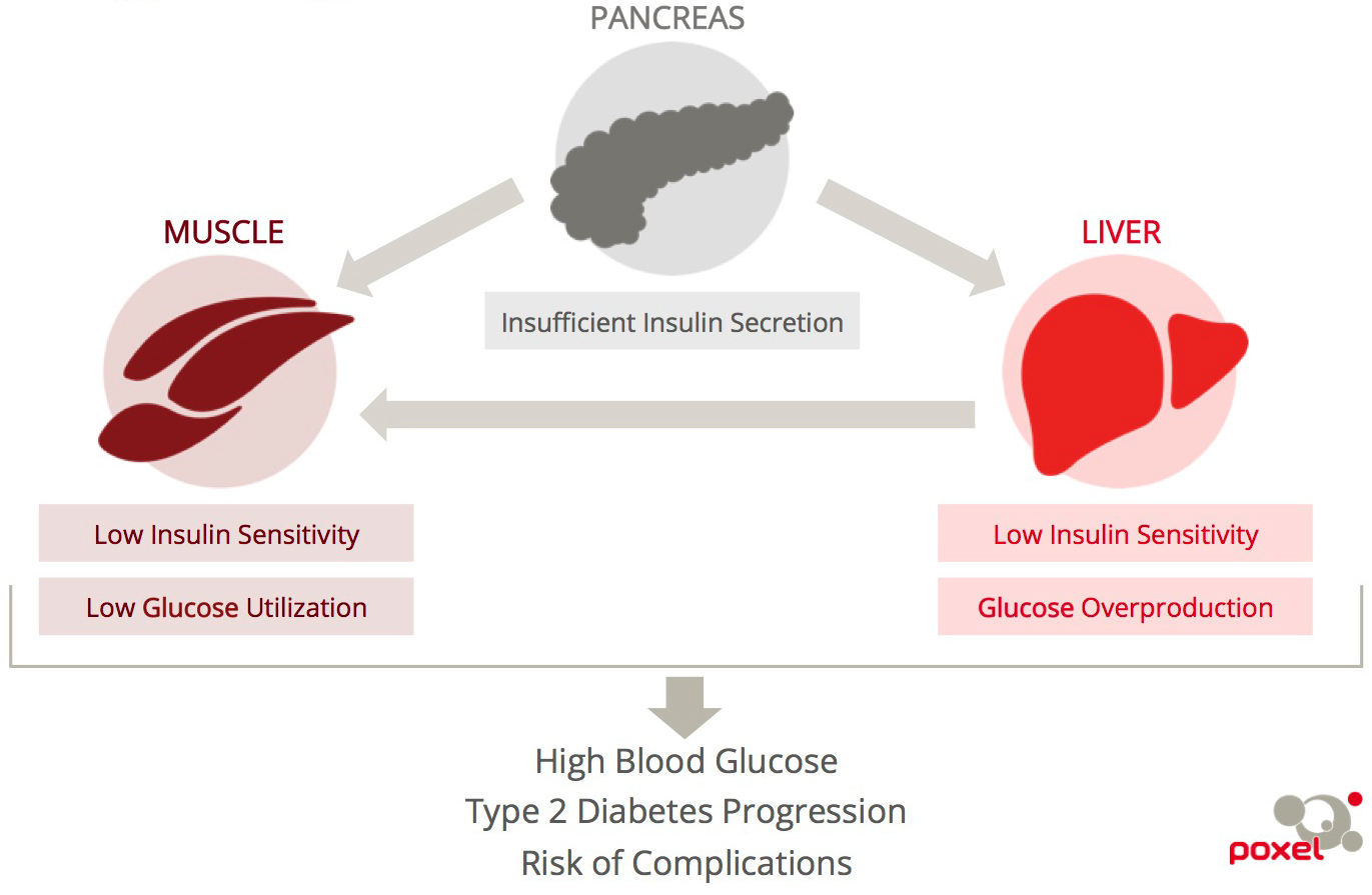 A diagram illustrating the progression of Type 2 Diabetes